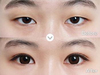 中国做眼睛整形最好的专家是哪个?国内双眼皮专家排名