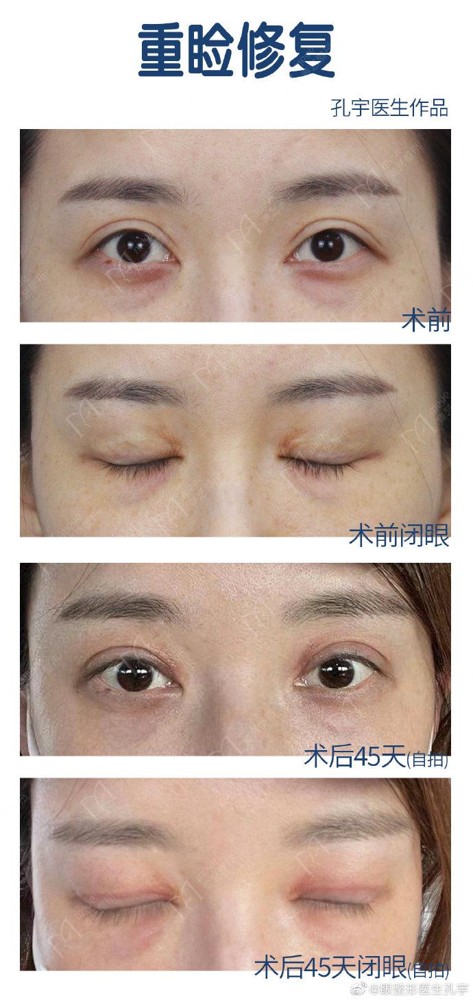 孔宇修复双眼皮案例