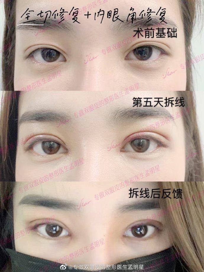 孟明星修复双眼皮案例