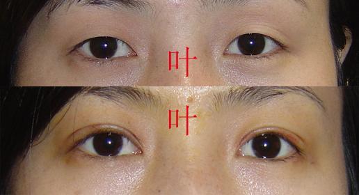 叶秀娣做双眼皮案例