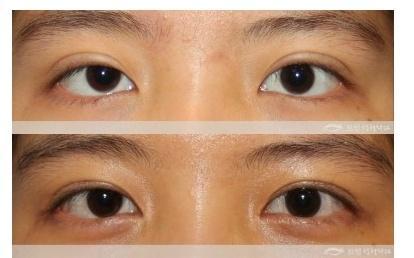 上海九院雙眼皮修復哪個醫生比較好?