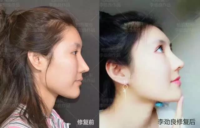 北京李劲良跟王军鼻修复谁更好?