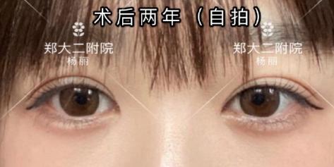 鄭州田國靜和楊麗對比哪個修復雙眼皮最好?